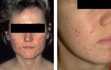 Acne Pariser Dermatology
