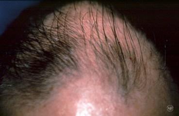 how often hair loss virginia