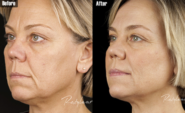Fillers - Pariser Dermatology