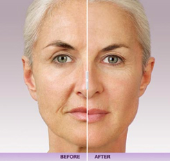 Fillers - Pariser Dermatology