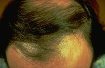 Hair Loss - Pariser Dermatology