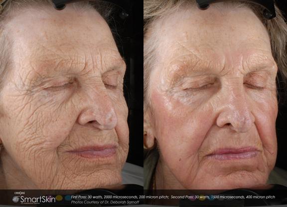 Fractional Laser Resurfacing - Pariser Dermatology