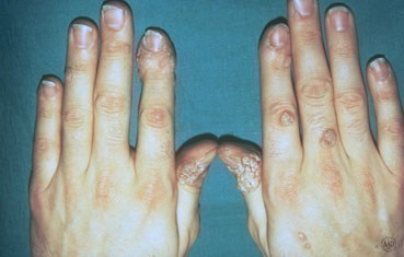 warts treatment by dermatologist