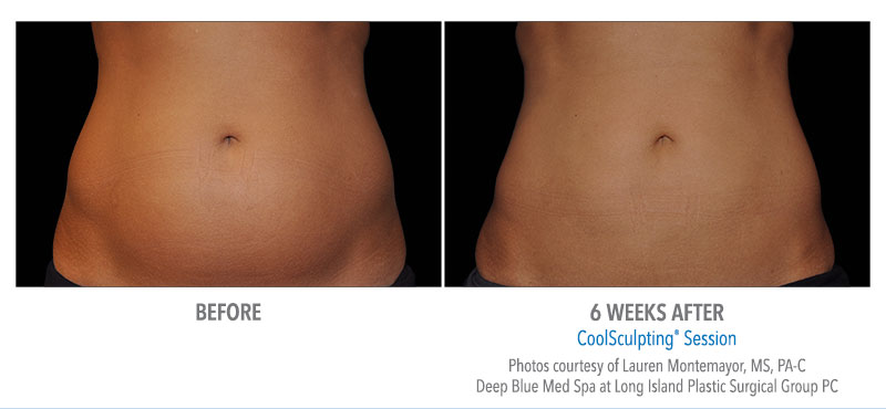 coolsculpting-before-and-after-pariser-dermatology