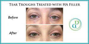 Treating dark circles under your eyes