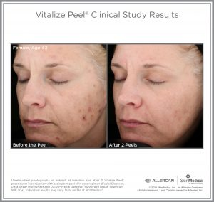 Chemical Peel Before and After Picture