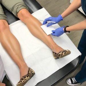 laser hair removal at Pariser Dermatology