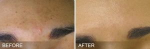 Before and After the HydraFacial Treatment